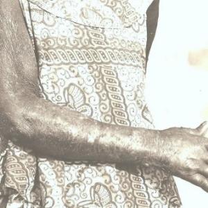 Leproserie de Kapolowe